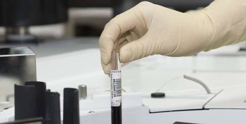 How to use a scouting column for your peptide purification